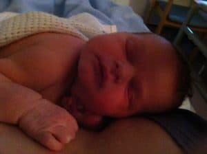 breastfeeding and CMPA