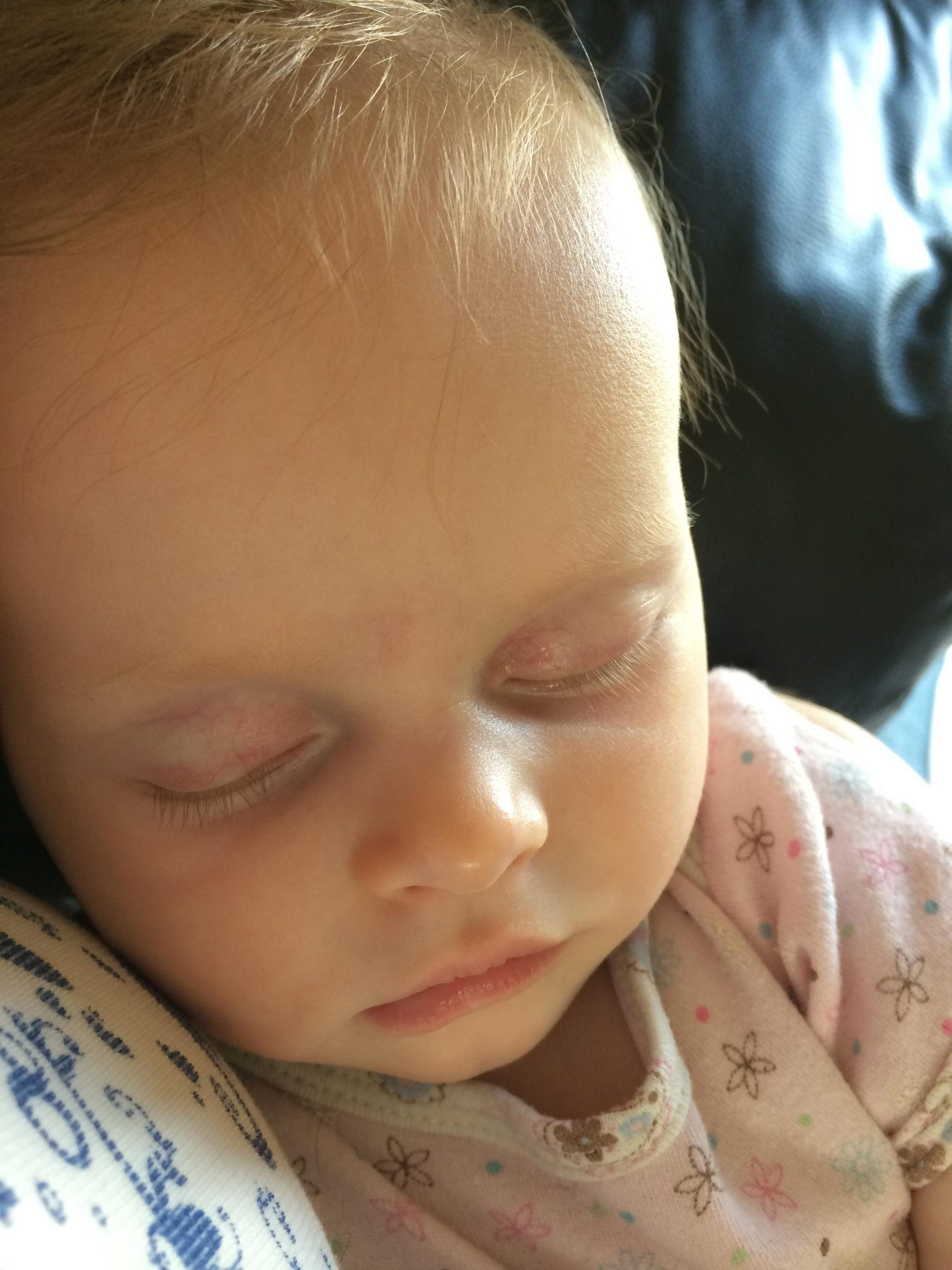Breastfeeding with CMPA and Multiple Food Allergies - Our Story